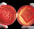 anemia emolitica