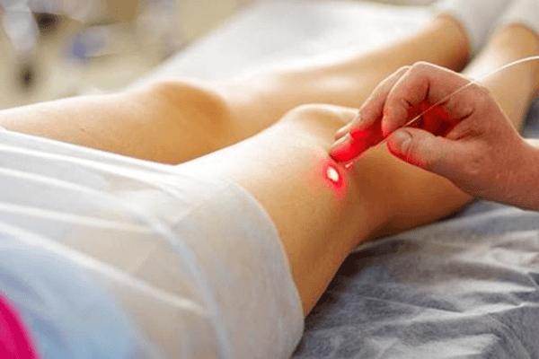 diatermocoagulazione