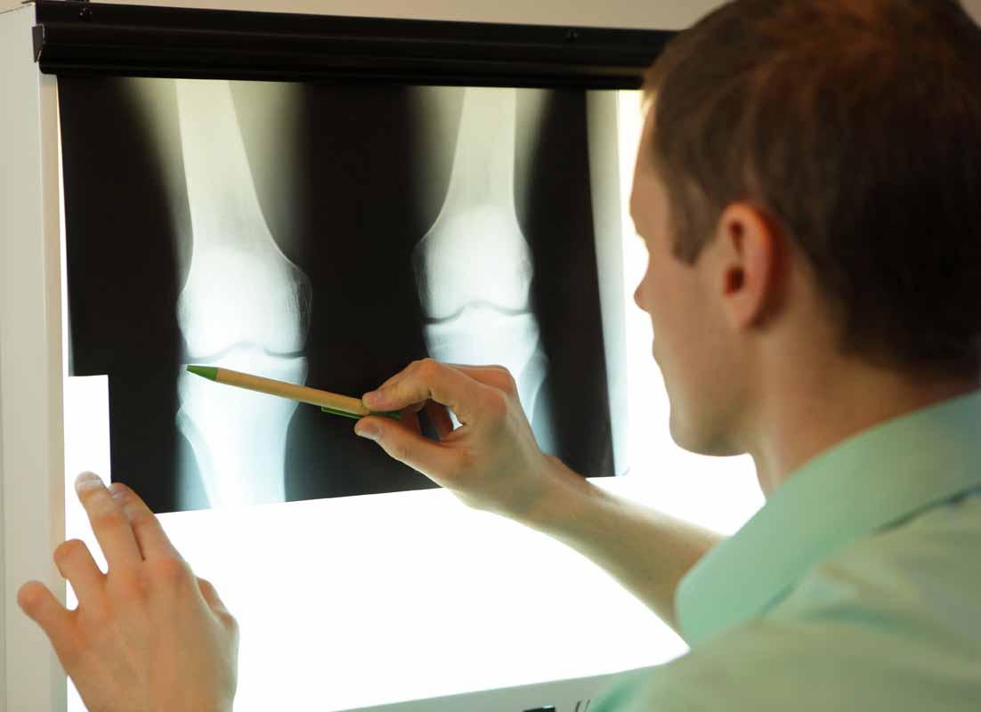 Cenni di anatomia del ginocchio