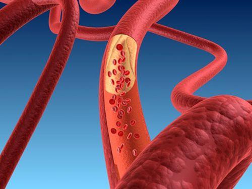 ipercolesterolemia-familiare
