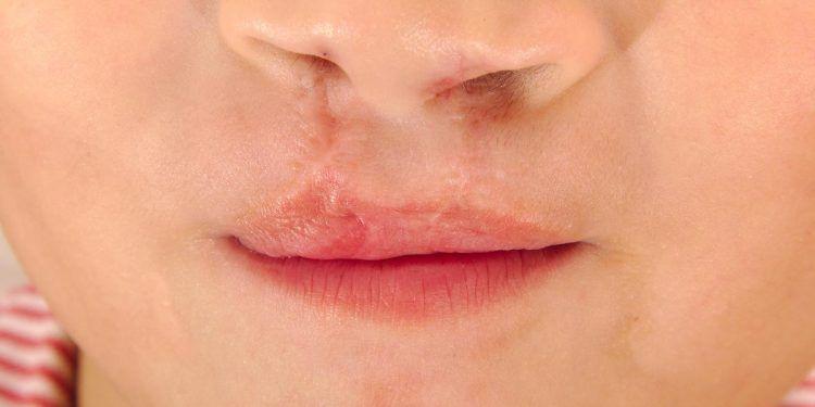Labbro leporino