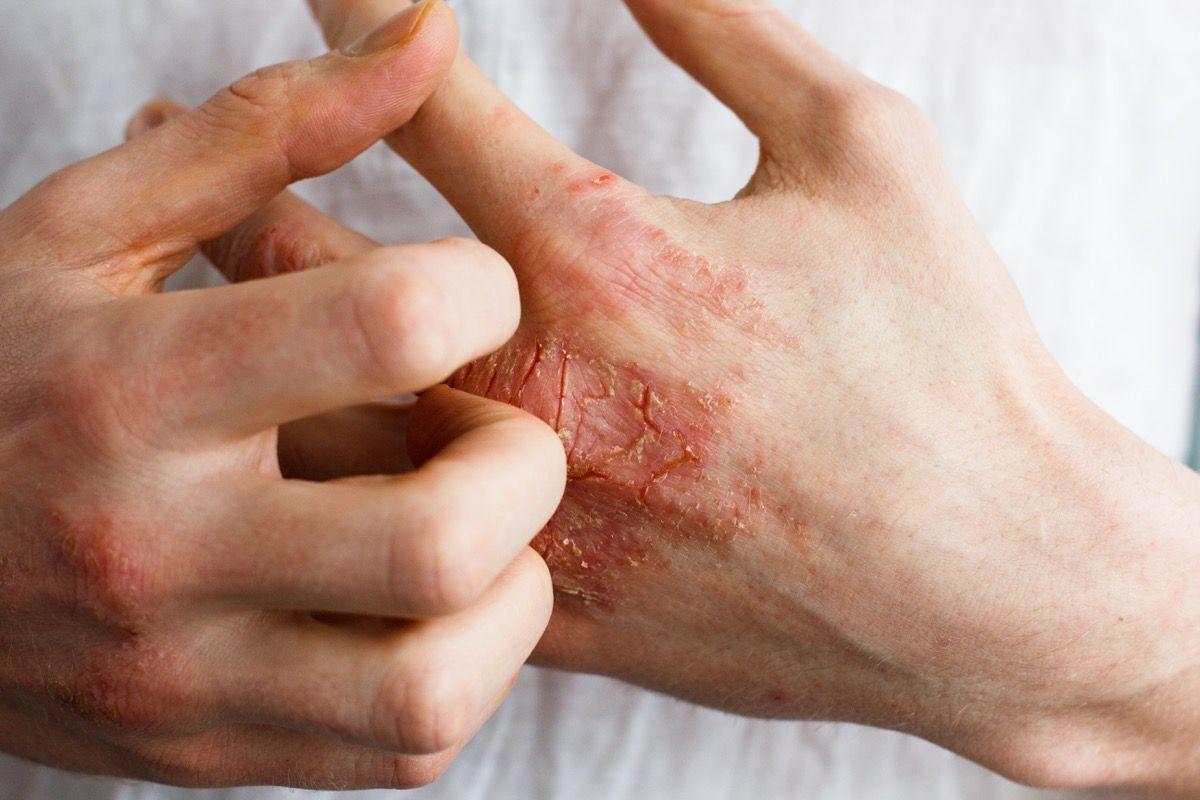 Piodermite, dermatite