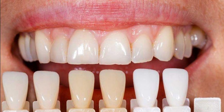 faccette-dentali1