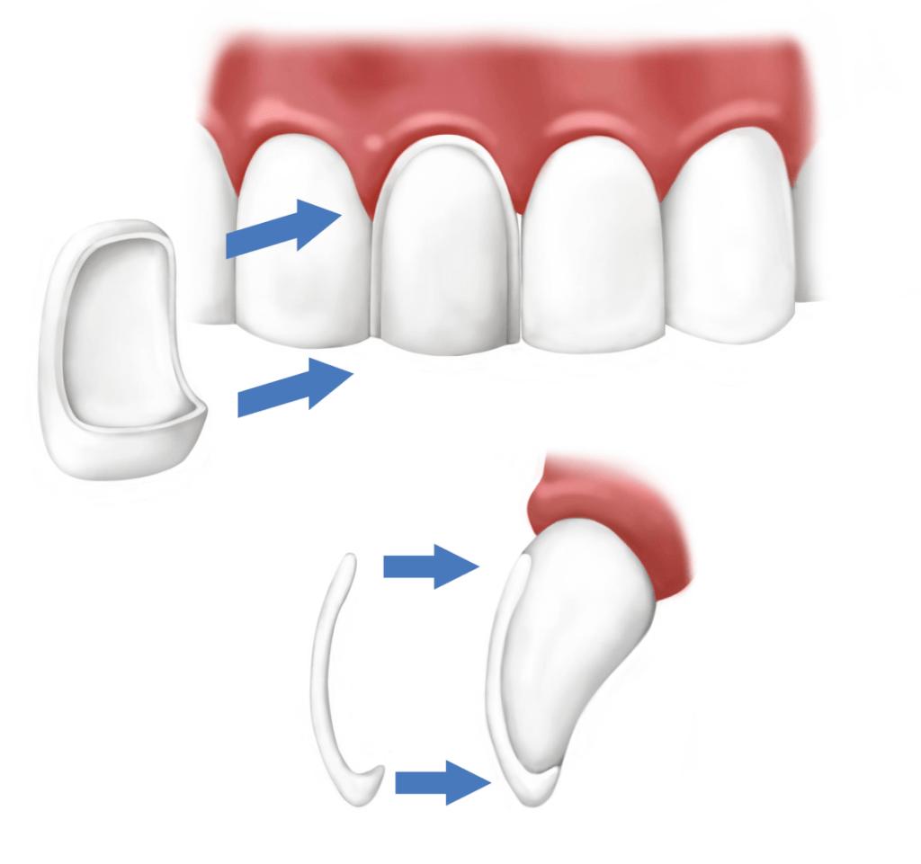 problemi-faccette-dentali-1140x1070