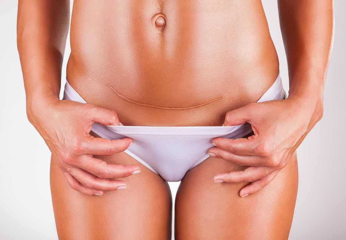 Dopo il parto: cicatrice cesareo