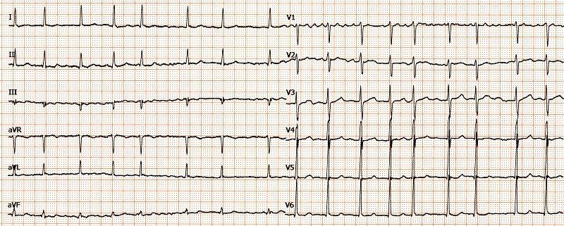 Ipertrofia ventricolare
