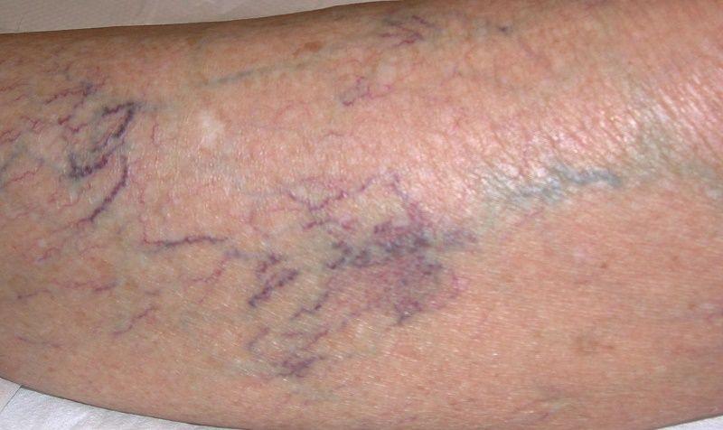 Varicosity di gambe a un anklebone