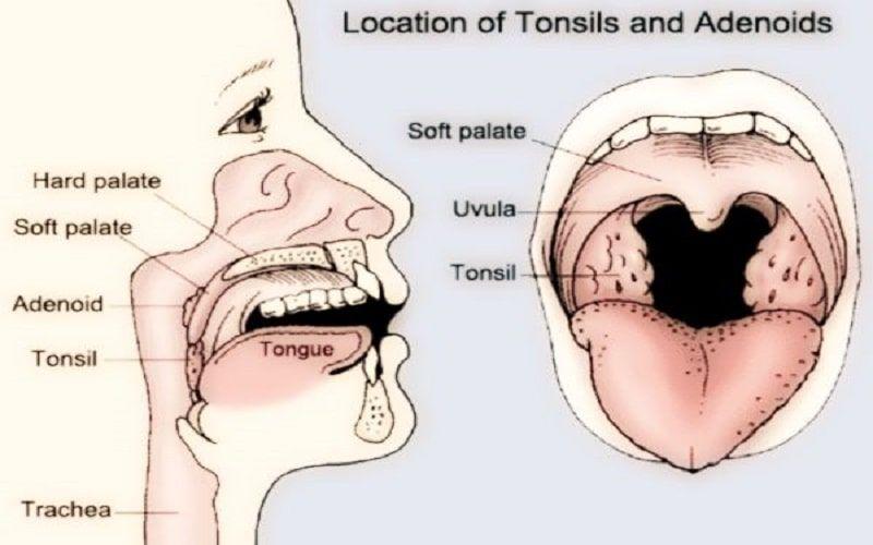 tonsille ipertrofiche