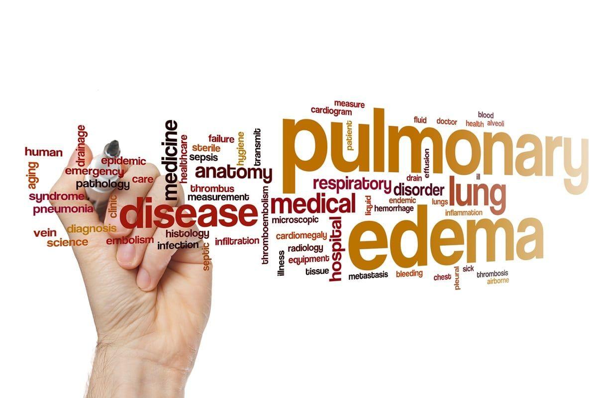 Edema polmonare acuto: le cause