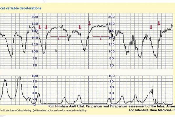 Gepatrombin a emorroidi a gravidanza