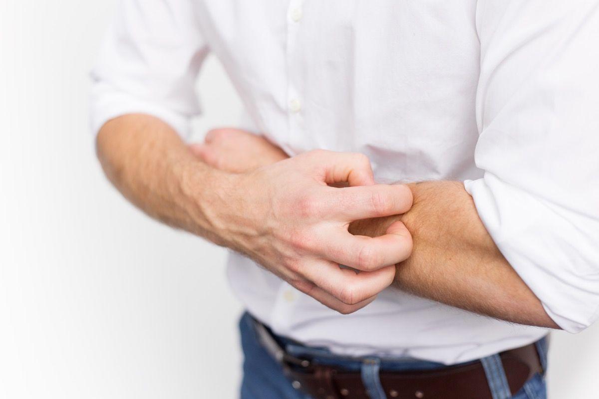 Diagnosi dermatite da contatto