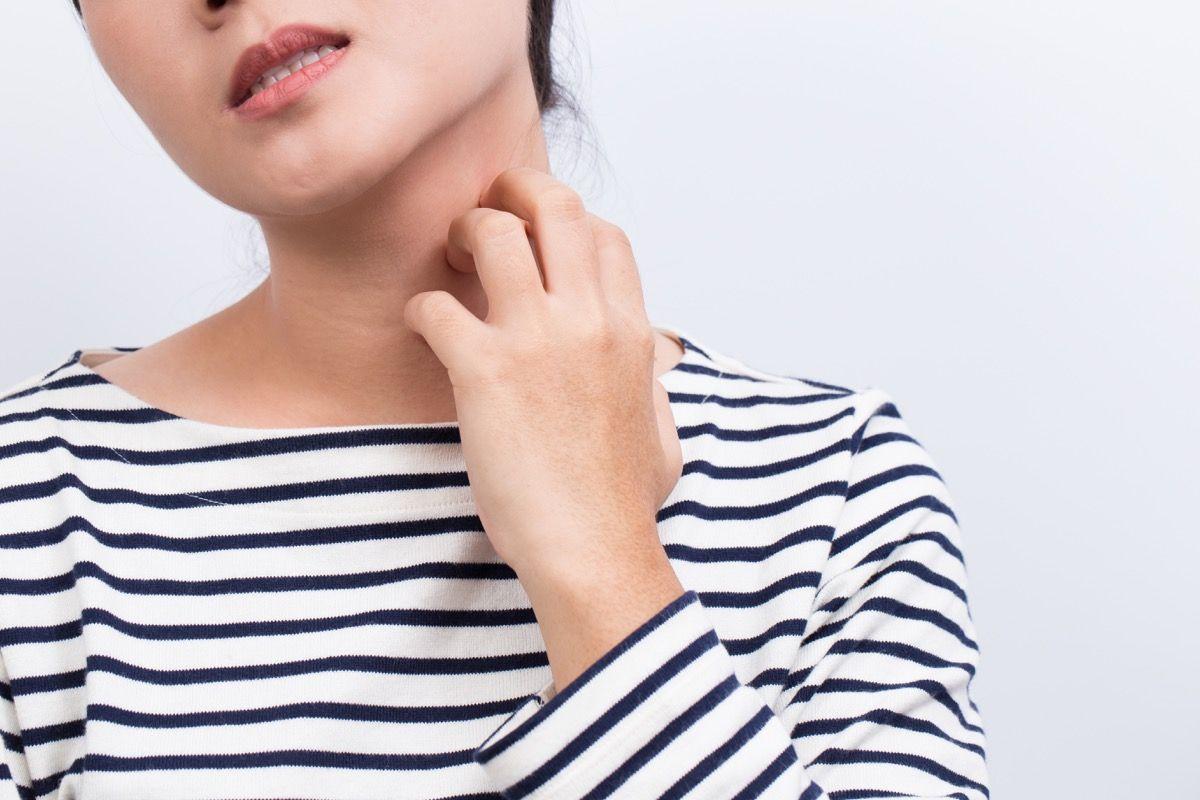 terapie naturali per la dermatite da contatto