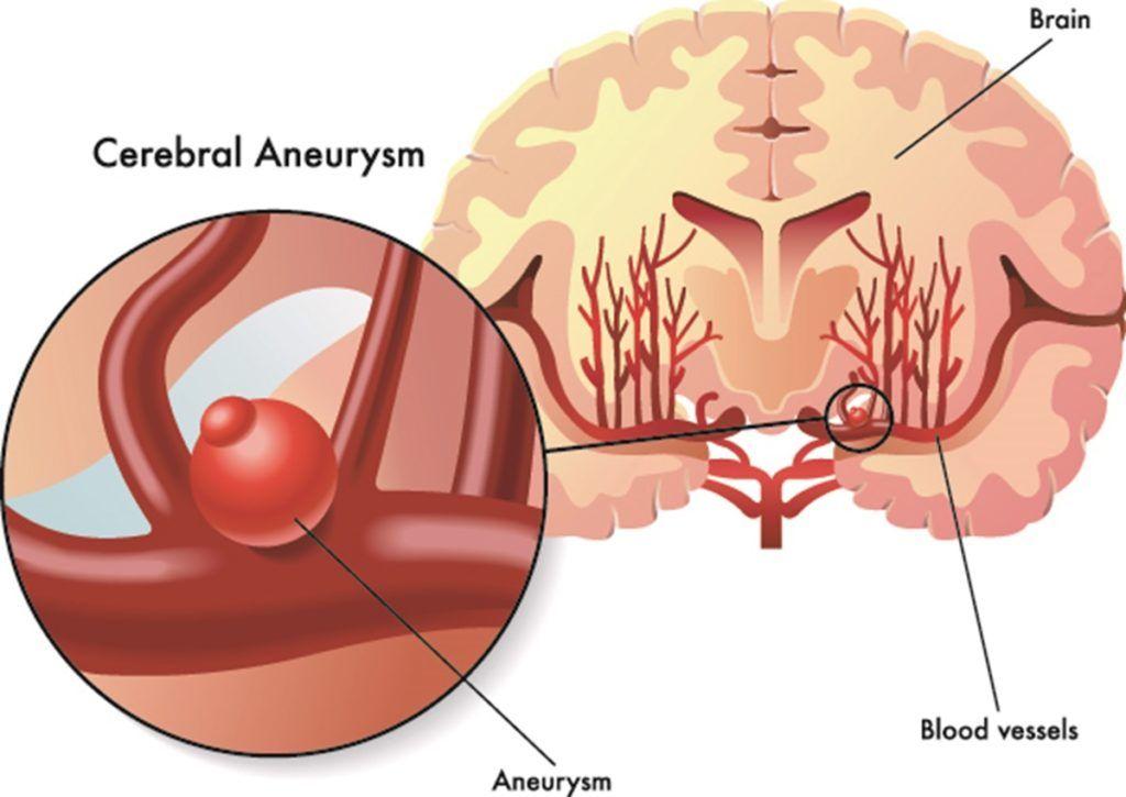 Aneurisma cerebrale: i sintomi