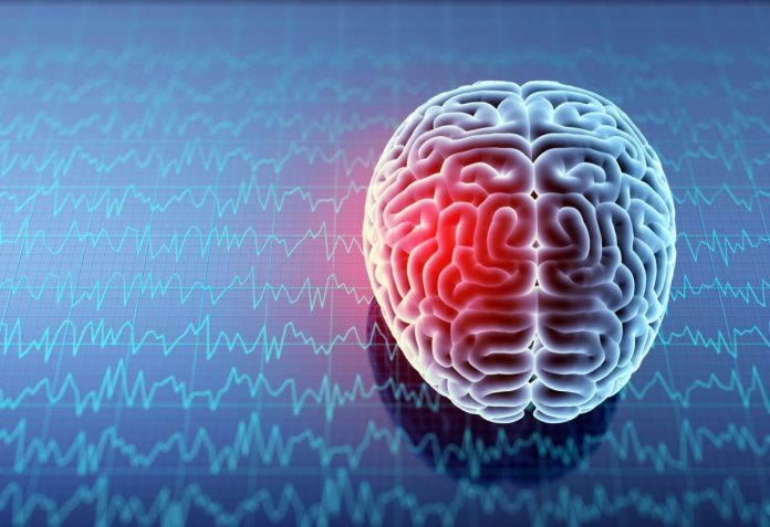 Aneurisma cerebrale