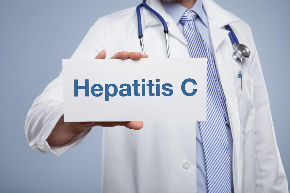Diagnosi di epatite C