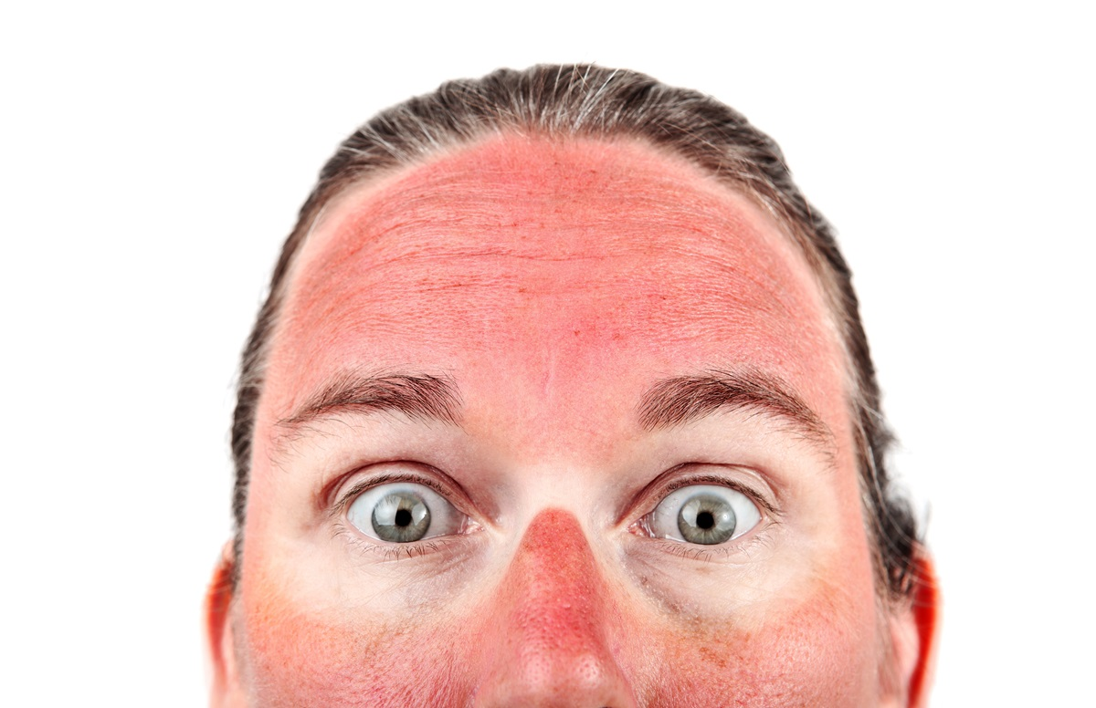 Eritema solare: come prevenirlo