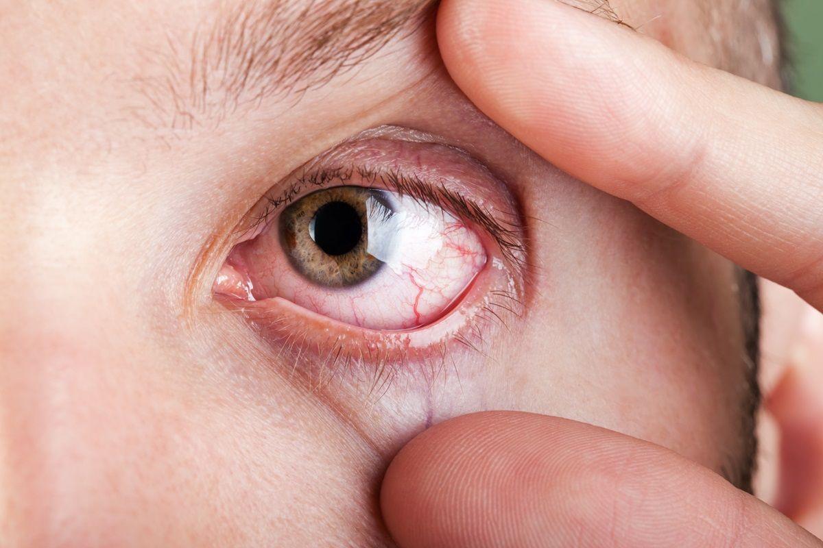Maculopatia: un disturbo della macula