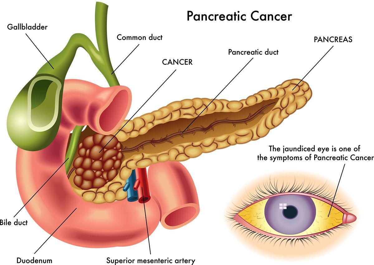 Nuovo test per la diagnosi-precoce del tumore al pancreas