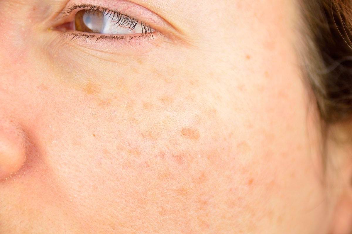 come curare i nei rossi sulla pelle