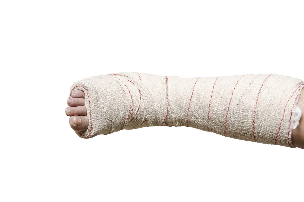 diagnosi di frattura al malleolo