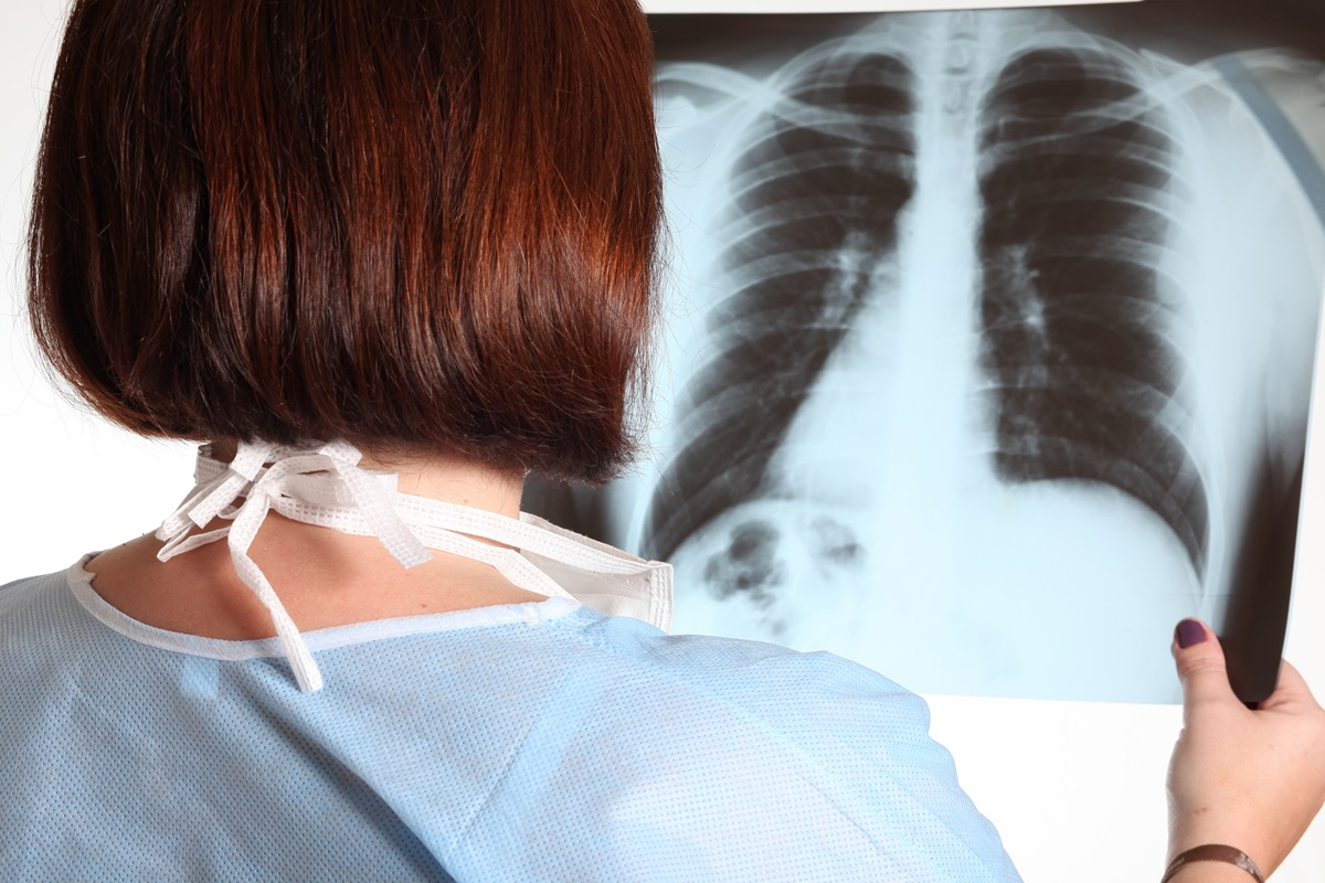 iocattolo scambiato per un tumore al polmone: le testimonianze dei medici
