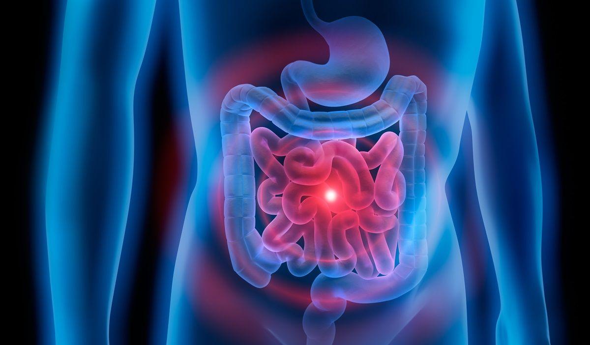 Volvolo torsione intestinale: terapia