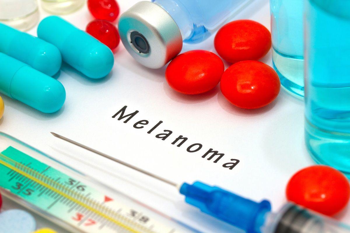 studio sul propanolo contro il melanoma: come è stato condotto