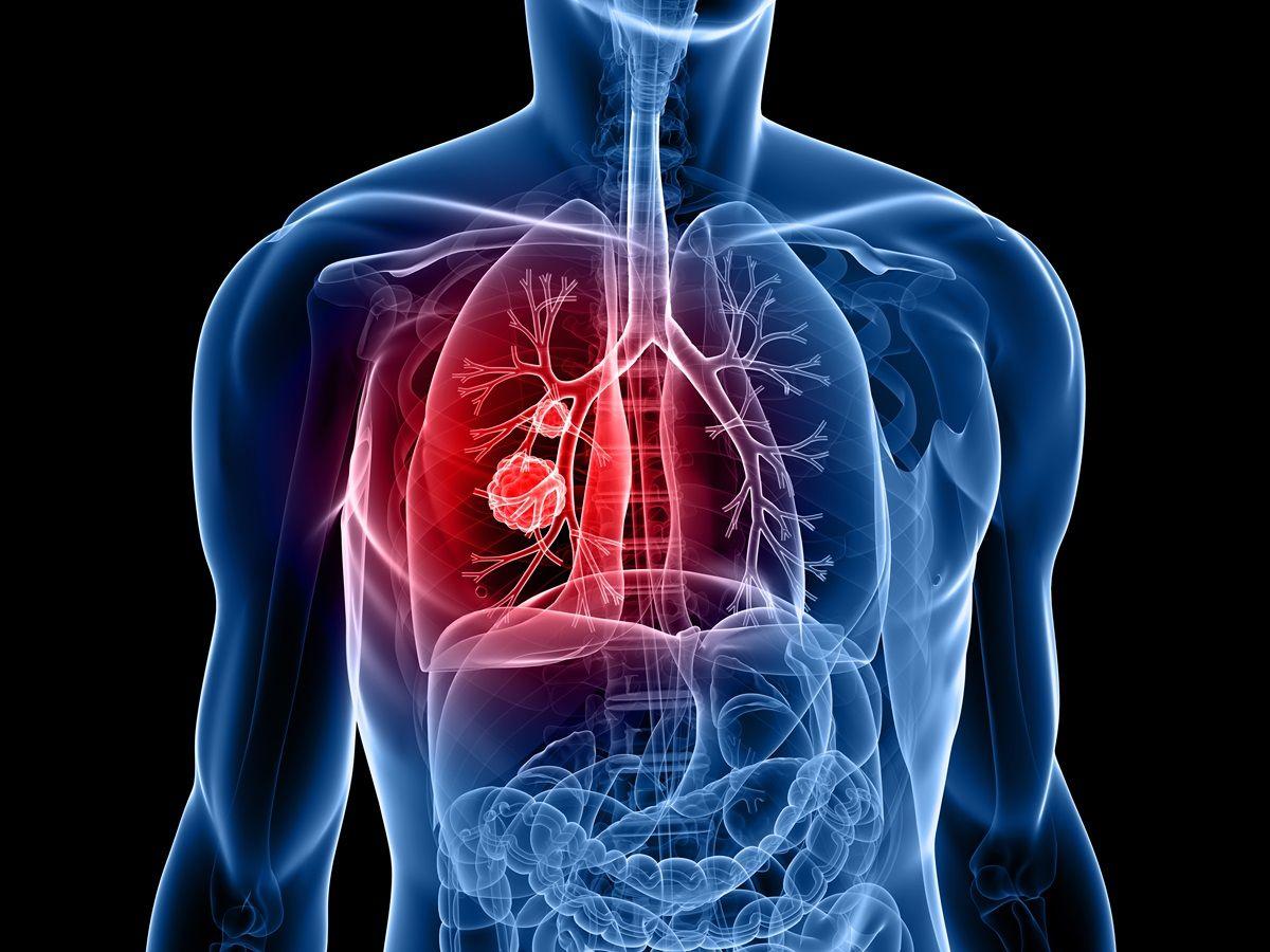 Incidenza maschile nei tumori al seno