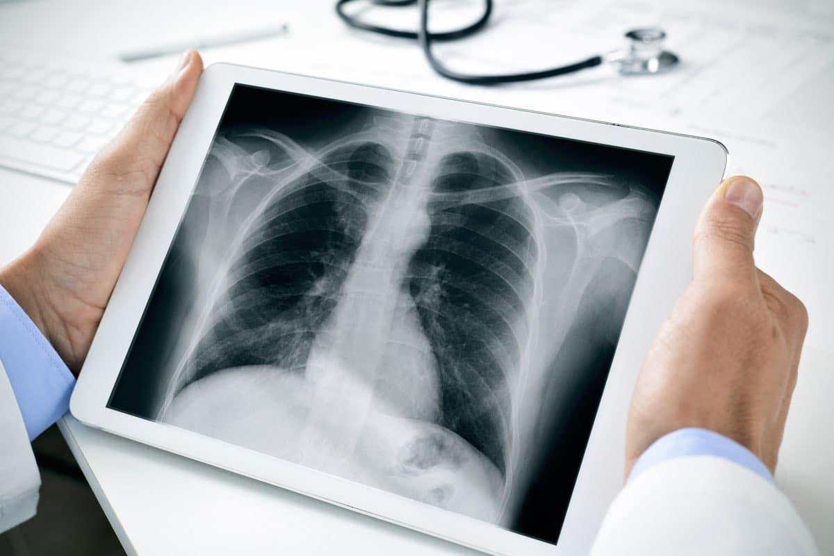 radiografia costole rotte