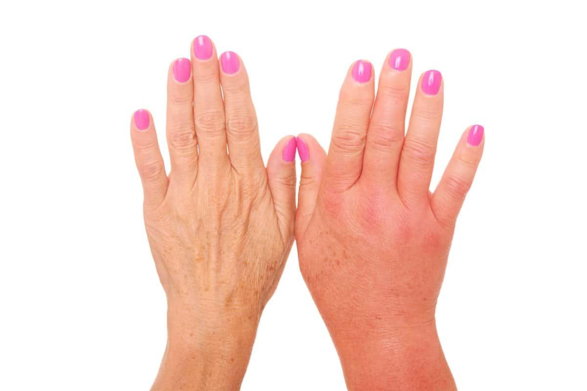 Mani e dita gonfie e doloranti: cause e rimedi