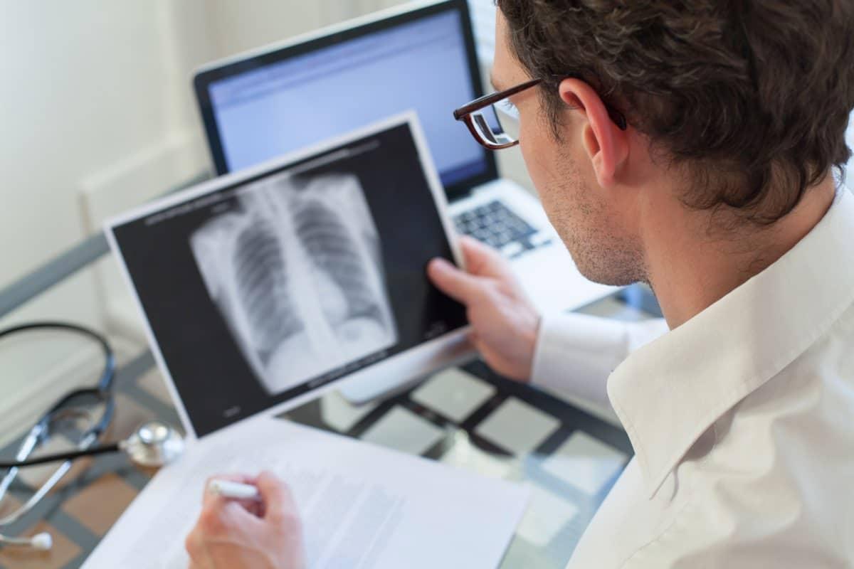 Cosa avviene durante la broncoscopia