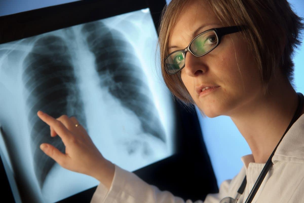 I rischi della broncoscopia