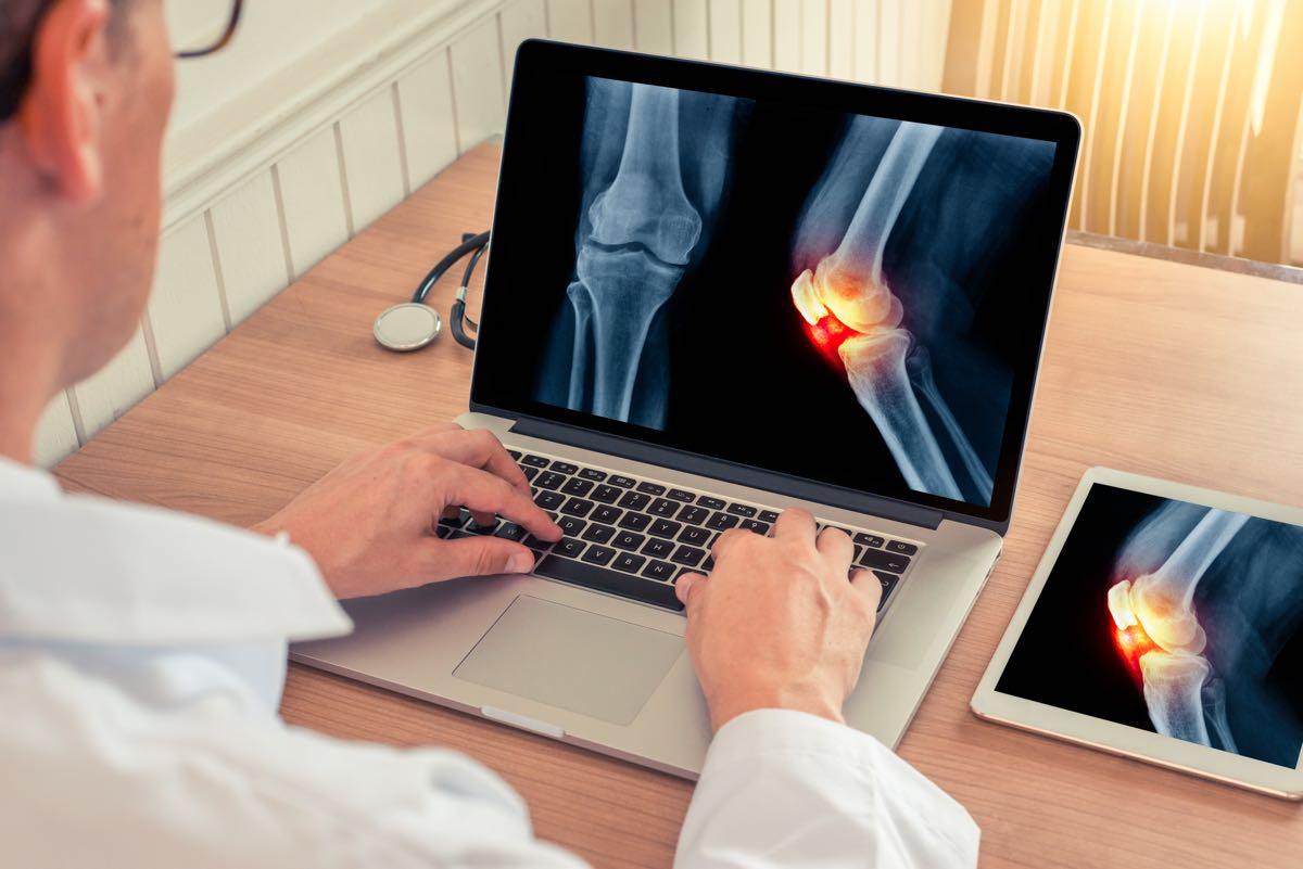 Come funzionano le iniezioni di acido ialuronico nel ginocchio