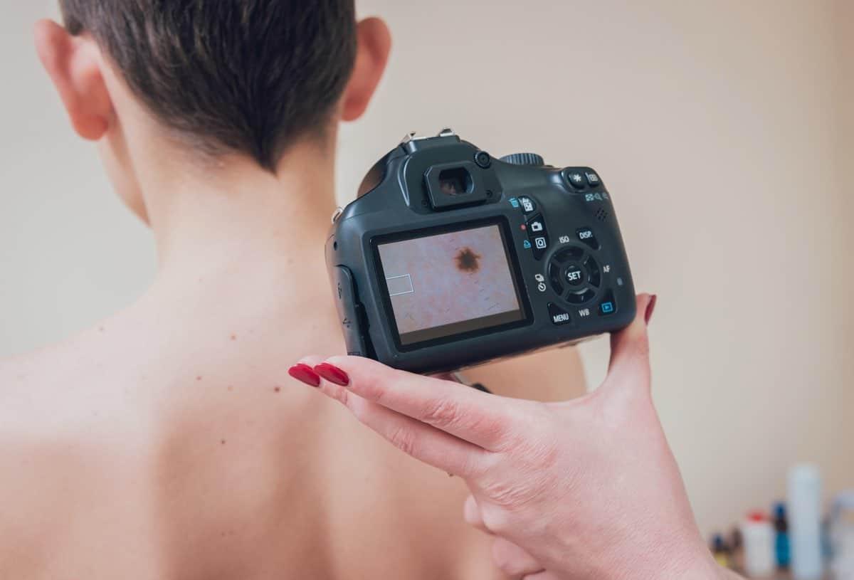 Tipi di melanoma