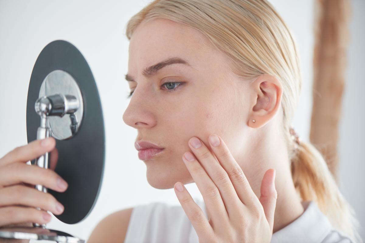 Da che cosa è provocata l'acne