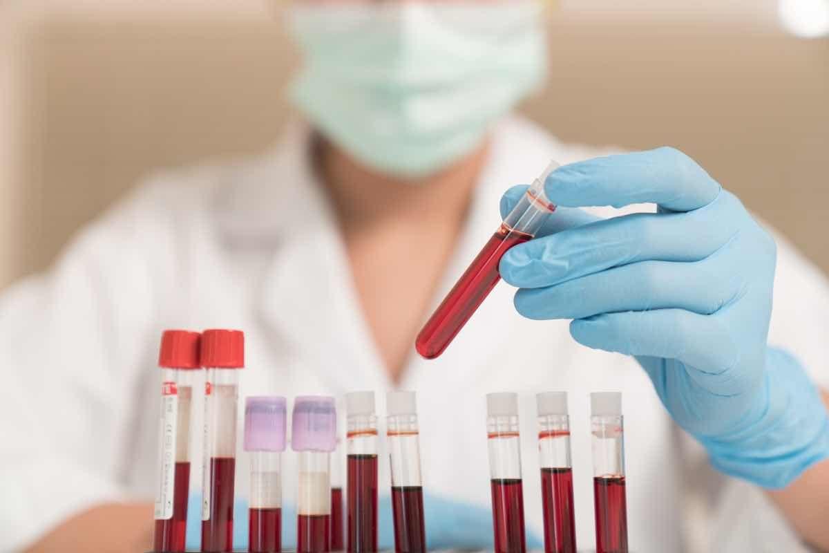 Livelli normali di tipi di emoglobina