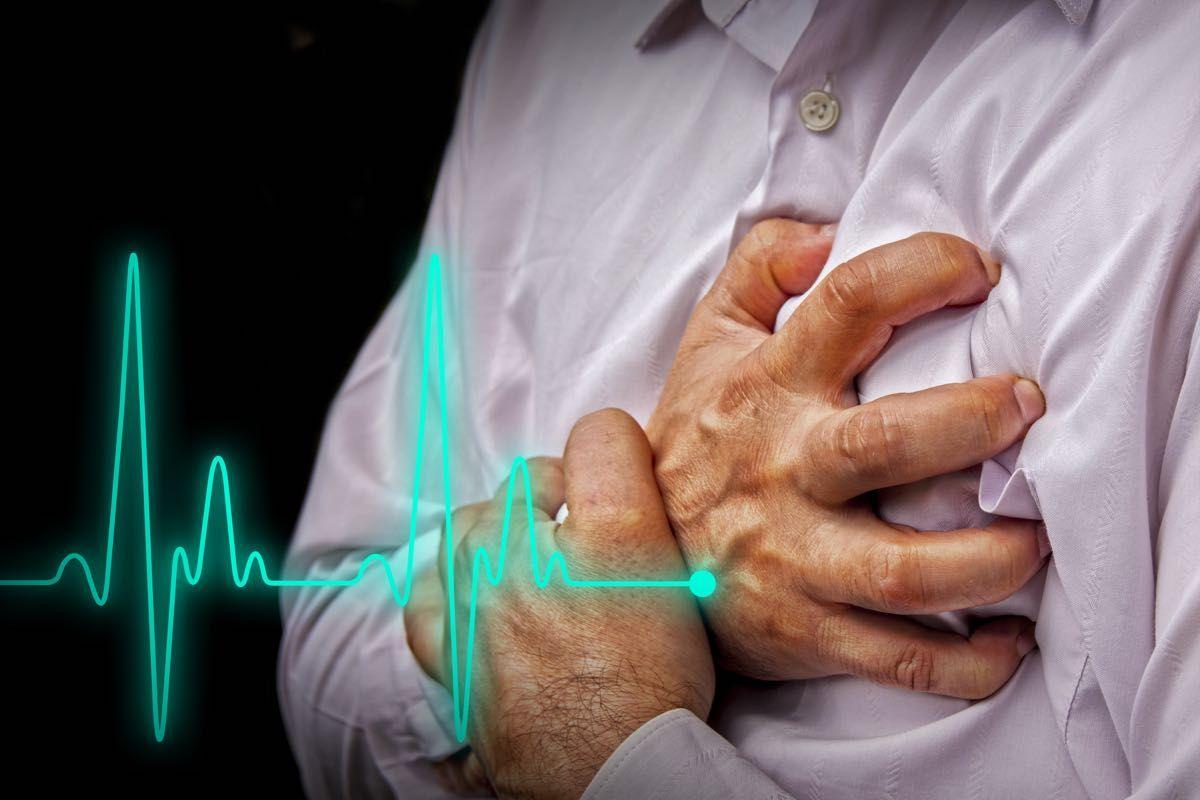 Cardiopalmo