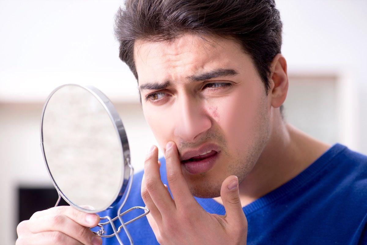 Come prevenire le cicatrici da acne