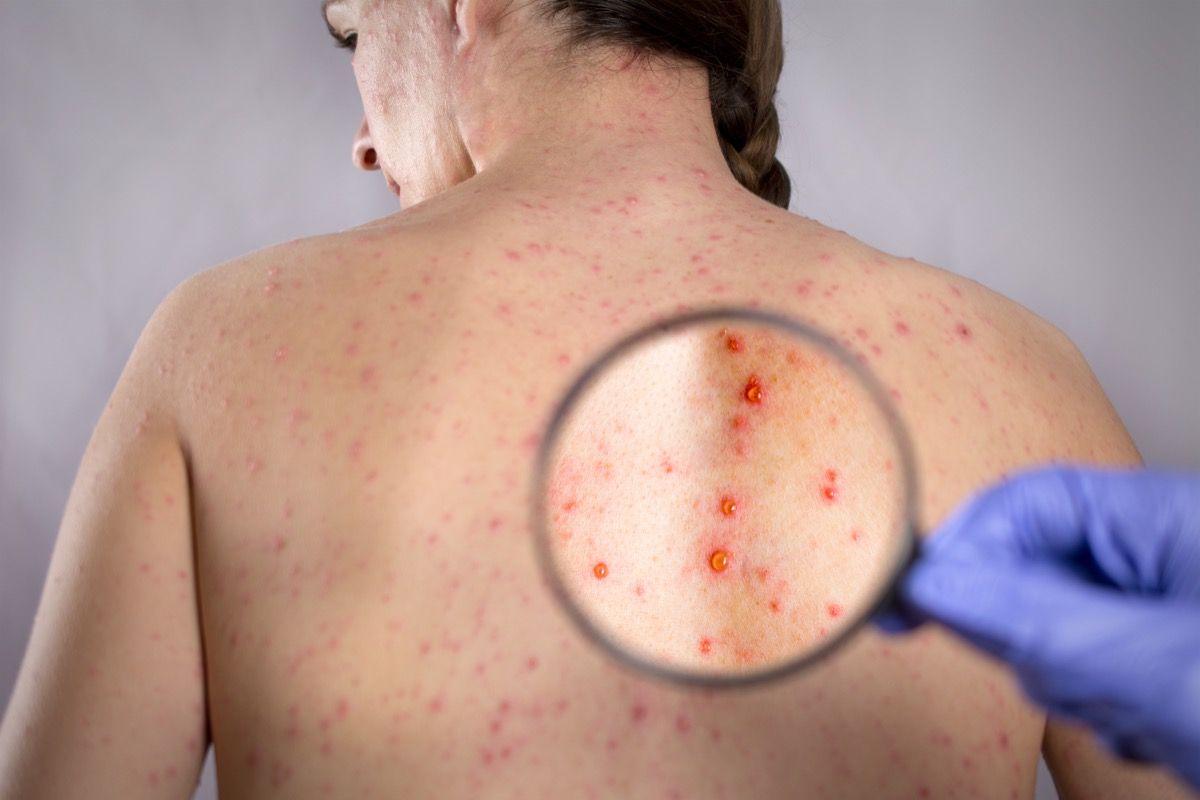 herpes o varicella