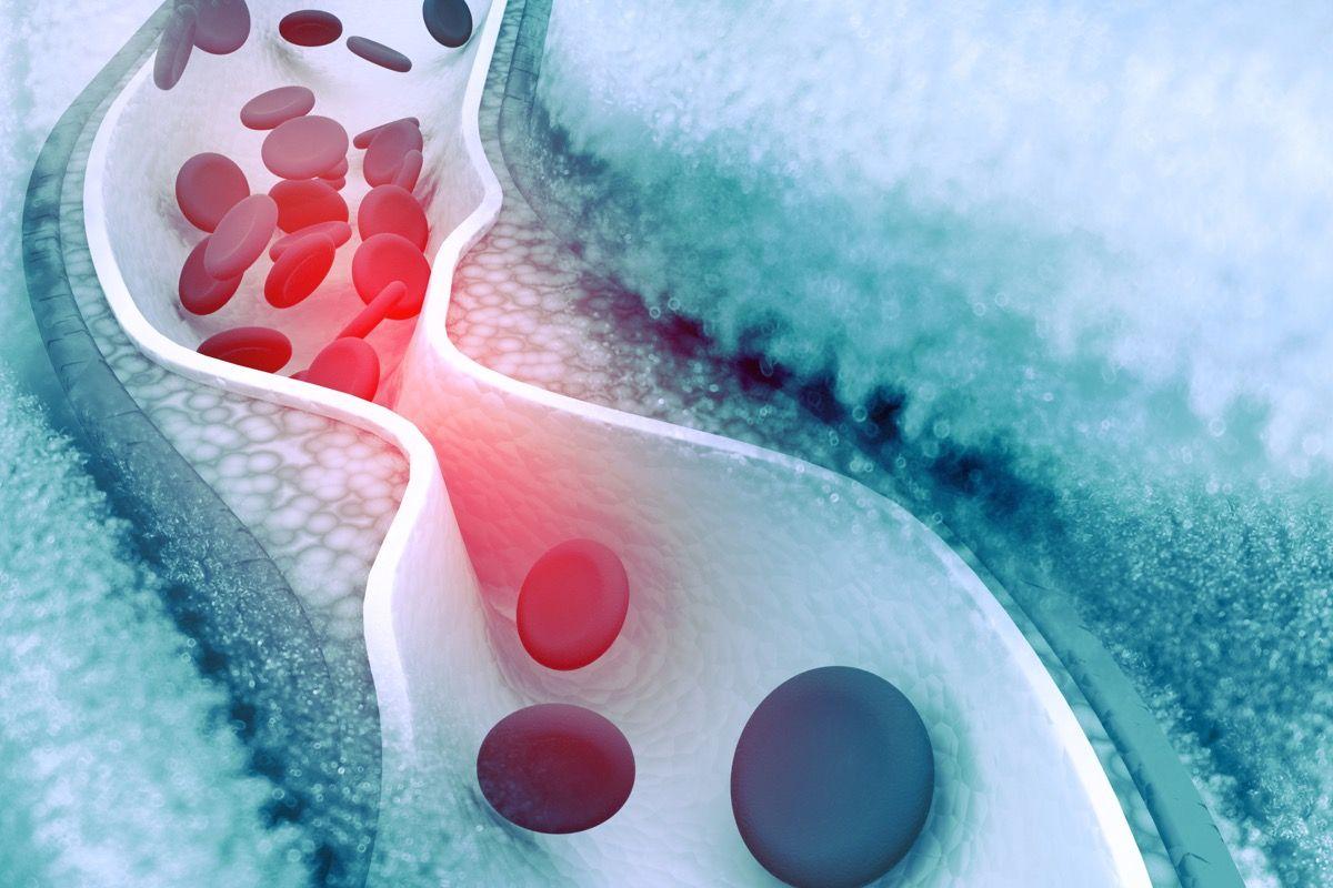 Quali sono i sintomi dell'aterosclerosi