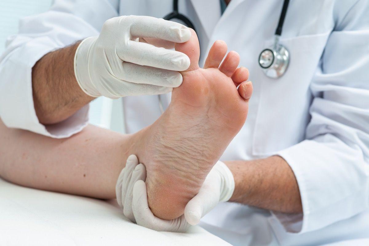 trattamenti delle infezioni fungini delle unghie