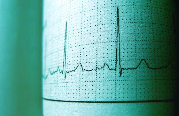 Elettrocardiogramma stampato