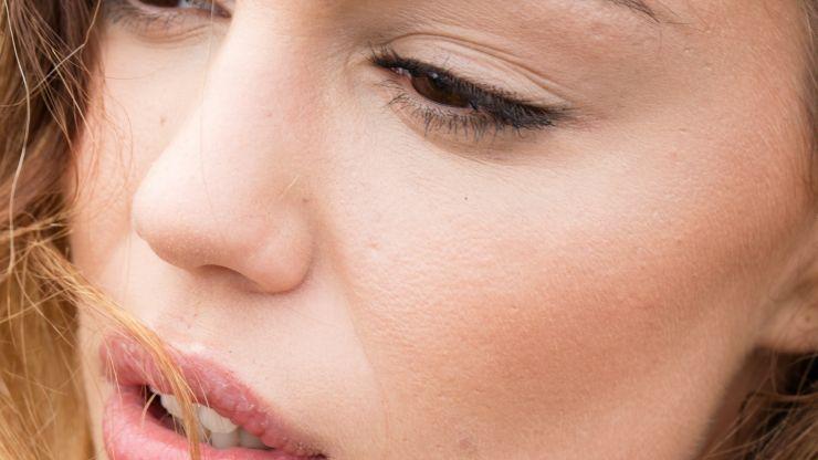 eliminare pori dilatati