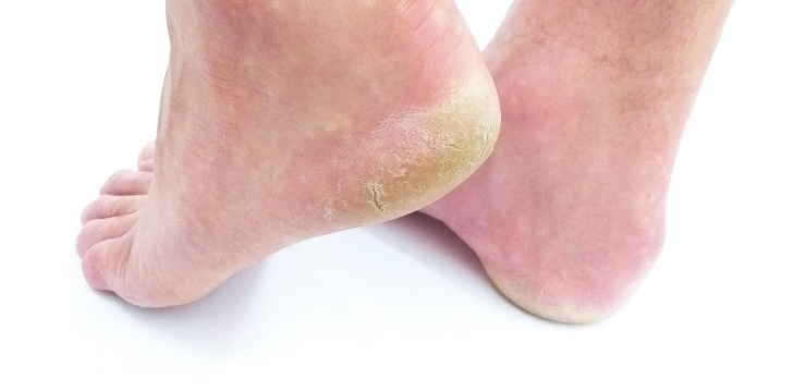 funghi ai piedi