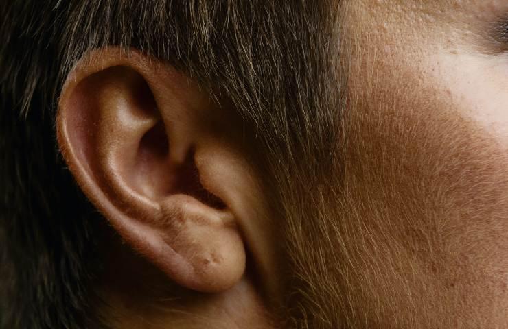 prurito orecchie