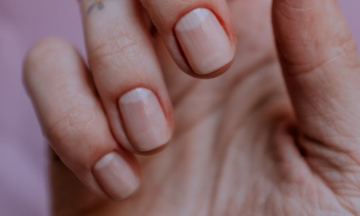 unghie spezzate cause rimedi